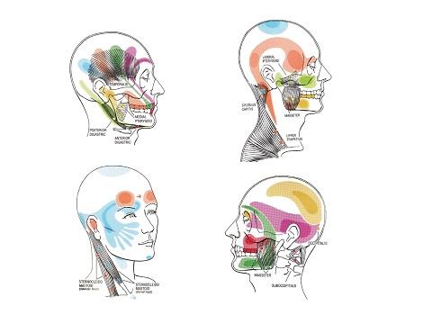 hoofdpijn fysiotherapie